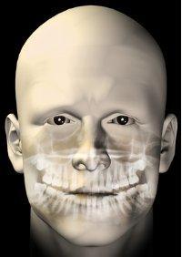 Röntgen - Strahlenbelastung wird immer geringer